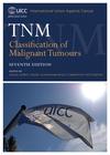 TNM Classification of Malignant Tumours 7e